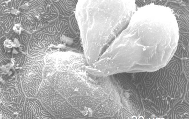 struktur_hati_sisik_nemacheilus_spiniferus